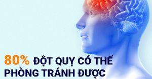 Các yếu tố nguy cơ gây nên đột quỵ não.